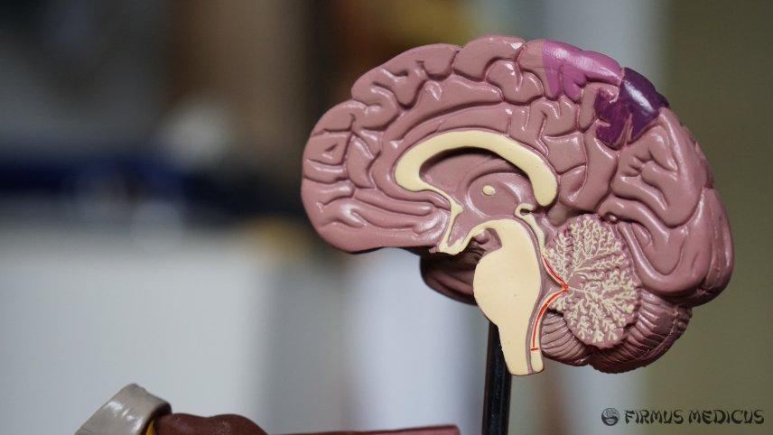 Galima mobiliųjų telefonų žala smegenims