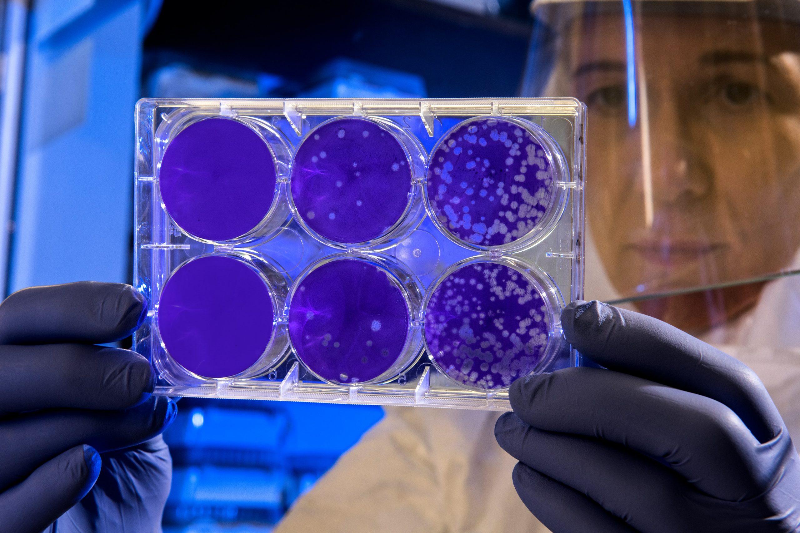 Žmogaus papilomos virusas: simptomai, eiga ir vakcinų apžvalga
