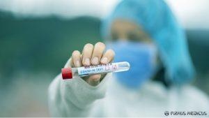 COVID-19 nustatymas PGR tyrimo metodu - testų tikslumas ir patikimumas