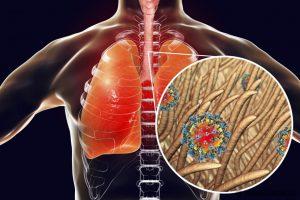 Ar reikia bijoti tymų sukeliamos imuninės amnezijos?