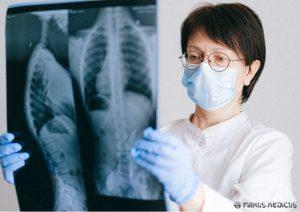 Tuberkuliozė: simptomai, eiga, prevencija bei situacija Lietuvoje
