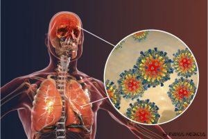 Tymai - sunki infekcinė liga ar nemalonus vaikiškas susirgimas?